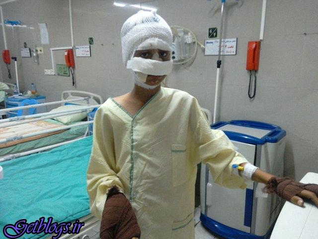 ترقهبازی نوجوان قزوینی را راهی بیمارستان کرد