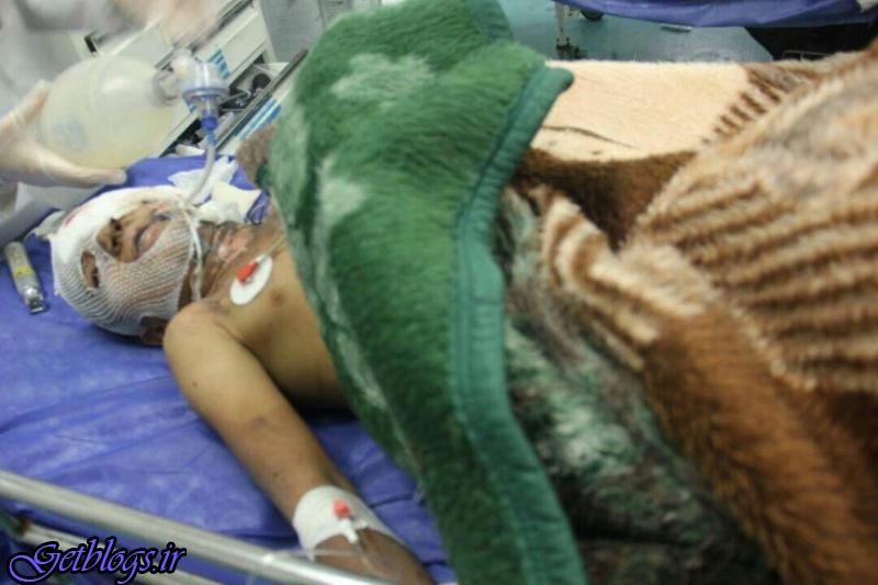 ترقه 14 اصفهانی را زخمی کرد
