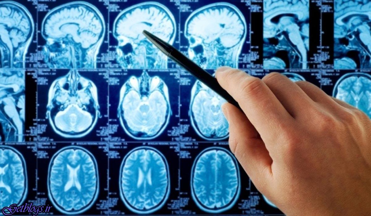 واکسن سرطان مغز طول عمر بیماران را زیاد کردن می دهد