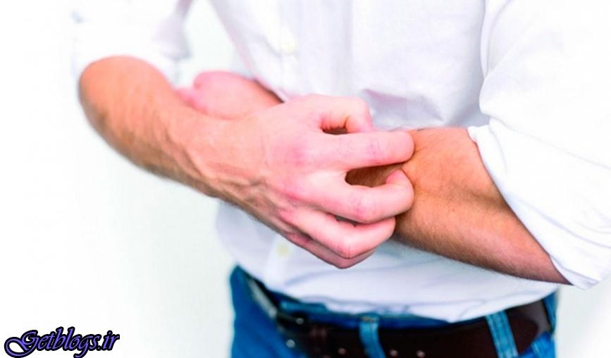 اگزمای شدید خطر حمله قلبی و سکته مغزی را زیاد کردن می دهد