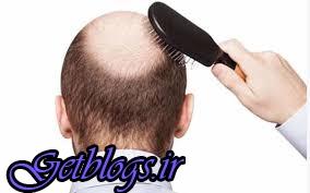 رشد سه برابری مو با داروی پوکی استخوان